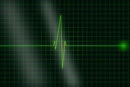 electrocardiogram-36732__180